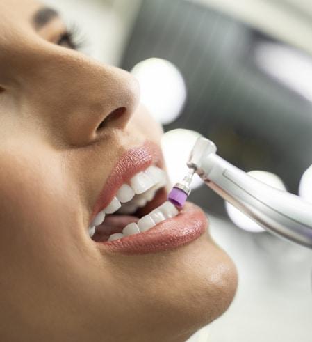 Dental Hygiene- Polishing